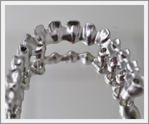 laboratoire-dentec-prothese-implants04