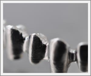 laboratoire-dentec-prothese-implants05