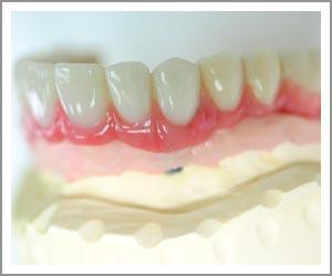 laboratoire-dentec-prothese-implants06