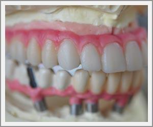 laboratoire-dentec-prothese-implants14